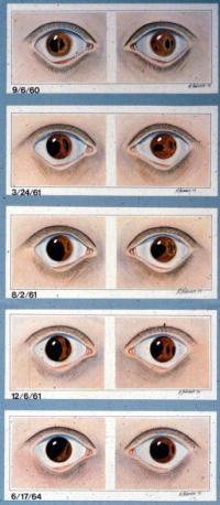 Progressive iris dissolution in 10 year old over 4 years