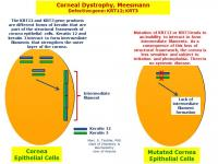 Meesmann corneal dystrophy results from the inability of defective keratins 12 and 3 to associate into normal corneal filaments.